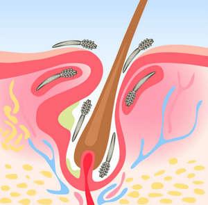 Лечение подкожного клеща у человека: симптомы и профилактика заболевания