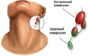 Healthy and inflamed lymph nodes