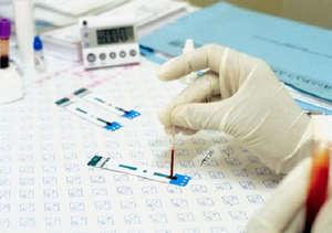 Blood test for hCG