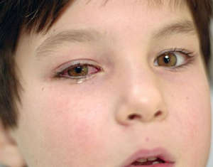 Infectious conjunctivitis