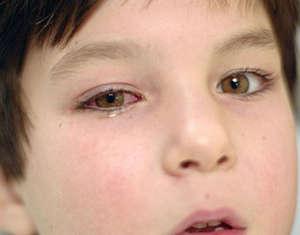 Глазные капли сульфацил натрия инструкция по применению детям
