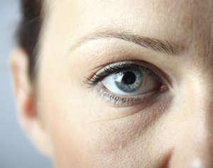 Морщины под глазом