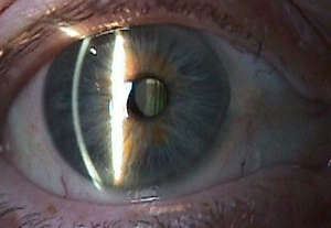 Manifestation of cataracts
