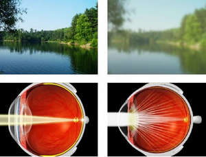 The effect of cataracts on vision