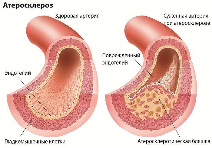 снизить холестерин крови