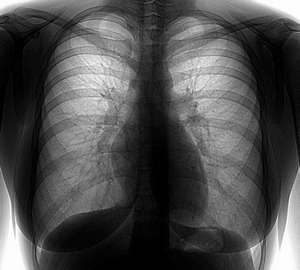 Fluorography of the lungs