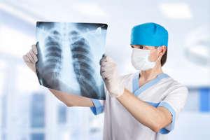 Doctor examines x-ray