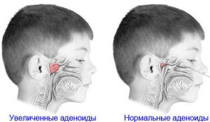 Normal and Inflamed Adenoids