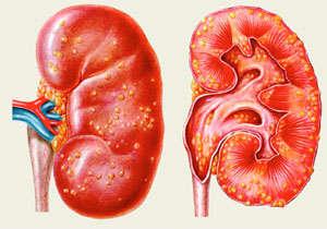 Основные отличия острого и хронического гломерулонефрита