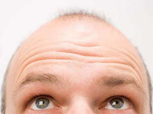 Early baldness