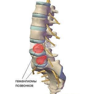 Остеохондроз грудного позвонка симптомы лечение