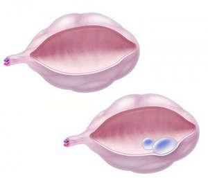 Кистома правого левого яичника  причины лечение