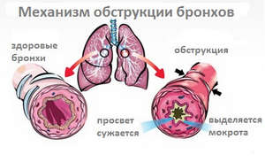 Bronchial obstruction