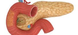Как вылечить рак поджелудочной железы с помощью народной медицины