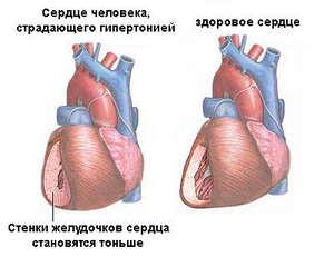 Лечение суставов в санатории новосибирск