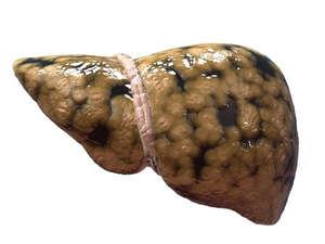 Эхопризнаки гепатомегалии диффузных изменений печени