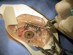 Laser retinal correction