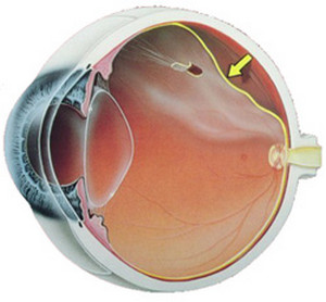 Retinal disinsertion