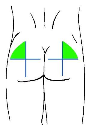 Как сделать укол внутримышечно в картинках