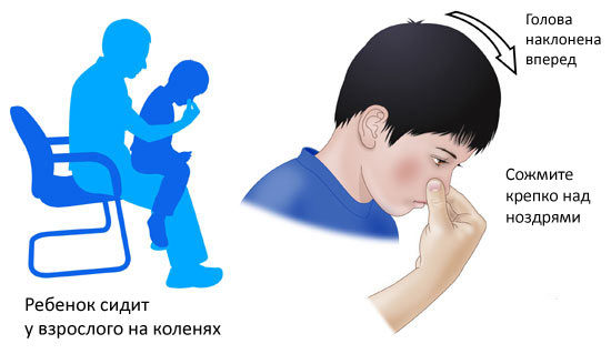 Stop Nose Bleeding