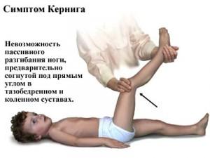Kernig's symptom