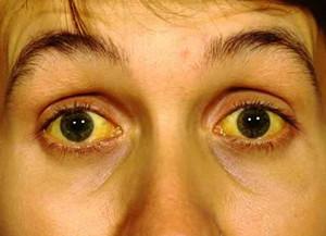 Желтые белки глаз у человека