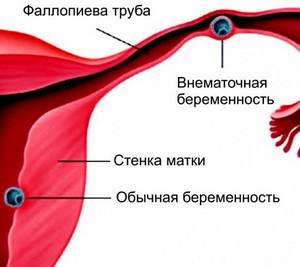 Какой ХГЧ при внематочной беременности по неделям: расшифровка результатов анализа крови