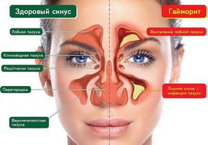 Healthy nasal sinuses and sinusitis