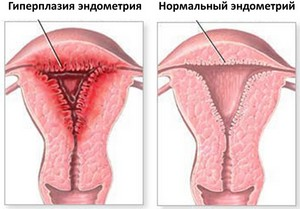 An example of normal endometrium and hyperplasia