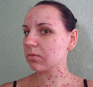 A rash on the face and neck of a girl