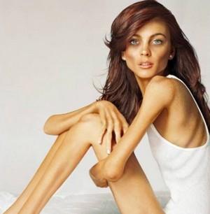 Как перестать есть анорексия