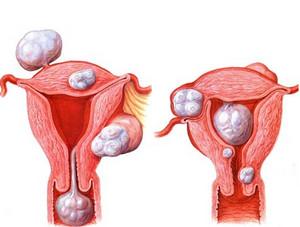 Fibroids uterus