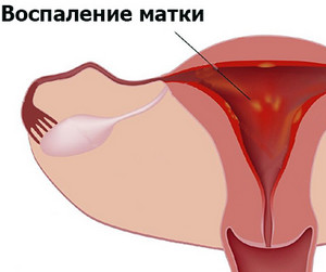 Народное лечение артроза коленного сустава 1 степени
