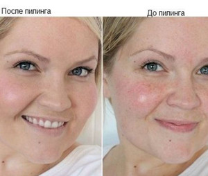 Photo of a woman before peeling and after