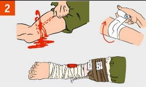 Bandage over the wound