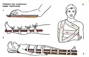 Bandages for certain types of fractures