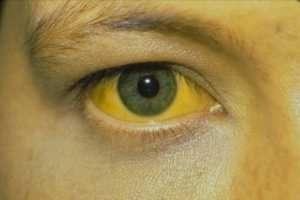 Yellow white eyes