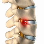 Spinal hernia treatment