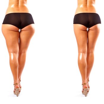 Как похудеть в бедрах ногах и ягодицах за неделю в