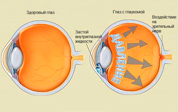 glaucoma treatment and prevention of disease