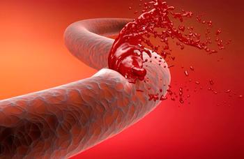 Hemorrhagic stroke consequences