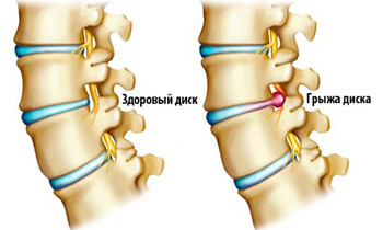 lumbar spinal hernia treatment and types
