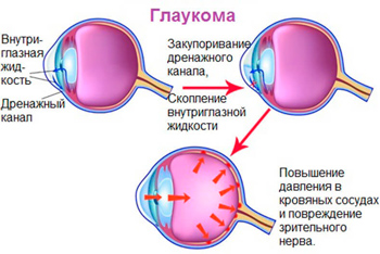 Effective treatments for glaucoma