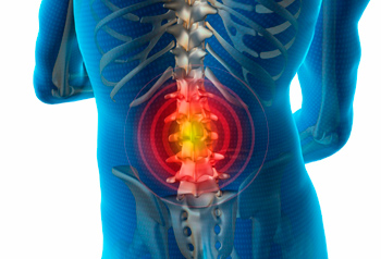 spinal hernia, correct treatment