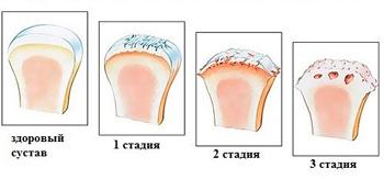 osteoarthritis of the knee, stage
