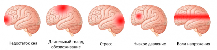 cause frontal headache
