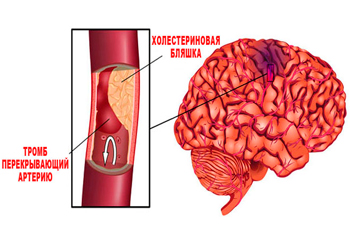 Stroke brain effects for humans