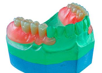 Types of Nylon Dentures