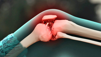 is it possible to cure osteoarthritis of the knee