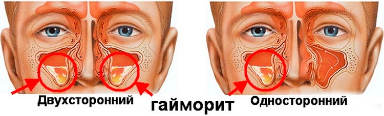 how to cure sinusitis folk remedies